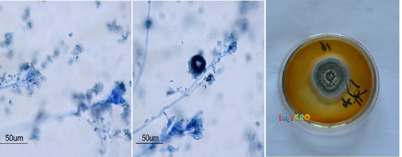 b图青霉菌菌丝和孢子形态(棉兰染色)